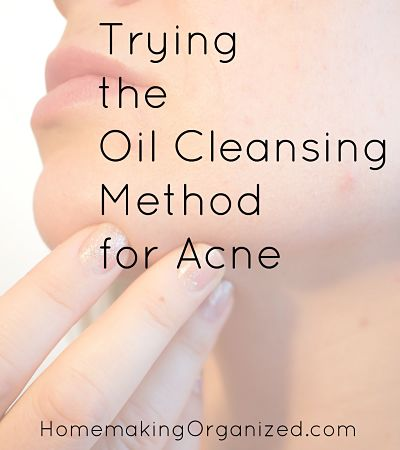 Trying the Oil Cleansing Method for Acne